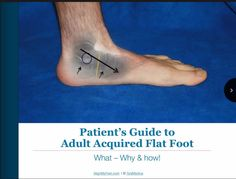 Adult acquired flat foot can be a painful condition that often affects the quality of one's life. This e-book was written to help those who suffer get to the root of the problem and discover treatment options.  http://qoo.ly/i2r3t