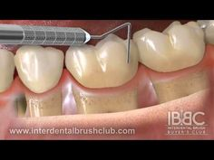 WHY IS INTERDENTAL BRUSHING  SO IMPORTANT AFTER POCKET   REDUCTION GUM SUGERY