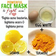 Egg white is a popular home remedy for beautiful skin. Coupled with lemon, which lightens scars & turmeric, which actively fights acne, this face mask is a powerful anti-acne remedy!
