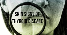 Thinning Hair? Joint Pain? Dry Skin? Hypothyroidism May Be To Blame