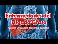 Enfermedades del Higado Graso, Sintomas de problemas en el Higado Graso e Inflamado - YouTube