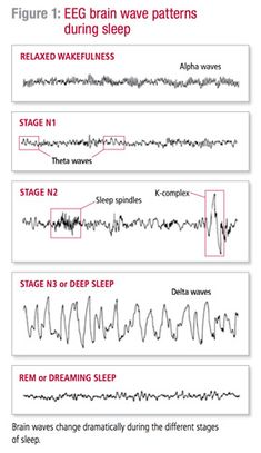 This pins goes more deeply into EEG brain wave patterns. Each stage is depicted with its correlated EEG. Each wave is different going from alpha waves to delta waves. And all changing drastically between stages. Epilepsy Treatment, Rem Sleep, Can't Sleep, Stages Of Sleep, Sleep Medicine, Sleep Studies, Respiratory Therapy, Brain Waves, Lucid Dreaming