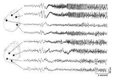 EEG_tonic_clonic_seizure