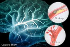 Slideshow: A Visual Guide to Understanding Stroke click image