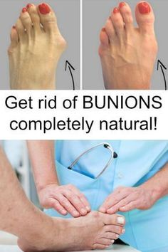 bunions natural cure