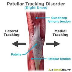 Suffering from patellar tracking disorder, patellar subluxation, or patellar dislocation? These patellar tracking exercises help prevent kneecap instability. Patellar Tendonitis Exercises, Arthritis Exercises, Knee Dislocation, Knee Strengthening Exercises, Stretches, Stretching Exercises, How To Strengthen Knees, Hip Problems, Knee Arthritis