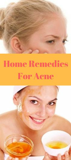 https://allbizreviews.com/2017/07/31/home-remedies-for-acne-how-to-treat-acne-at-home/ #homerediesforacne #homerediesforacnescars #homeremediesforacneovernight #homeremediesforacneblackheads #homeremediesforacnefast #acnetreatment