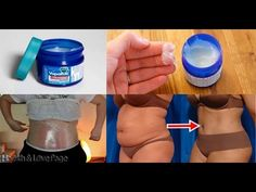 How to Use Vicks VapoRub to Get Rid of Accumulated Belly Fat and Cellulite, Eliminate Stretch Marks - YouTube
