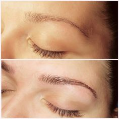 Before and After Microblading with Effortless Esthetics. Contact for your brow transformation today! Www.effortlessesthetics.com