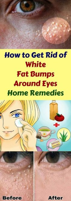 Home Remedies to Get Rid of White Fat Bumps Around Eyes Naturally The small white bumps on your skin which usually appear around your nose, cheeks or eyes are called milia. They're also known as milk spots and are quite common in babies. They happen as a Beauty Hacks For Teens, Natural Health Tips, Natural Skin, Skin Tag, Skin Care Treatments, Belleza Natural, Natural Home Remedies, Skin Problems, How To Get Rid