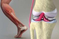 Sadece 7 günde kemik, tendon ve eklem ağrılarını yok eden doğal kür! - Toe Shoes, Ballet Shoes, Dance Shoes, Best Sneakers, Injury Prevention, Pumps, Heels, Sports Shoes, Christian Louboutin