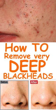 Blackhead Remover Mask- Natural Ways to Remove Acne and Blackheads Mitesser-Entferner-Maske - Natürl Remove Blackheads From Nose, Get Rid Of Blackheads, Remove Acne, Remove Stains, Mask For Blackheads, How To Remove Whiteheads, Blackhead Remedies, Blackhead Mask, Diy Blackhead Remover