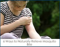 6 Ways to Naturally Relieve Mosquito Bite