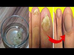 Remediu naturist pentru ciuperca unghiei Cum să scapi de ea în 7 zile - YouTube Icing, Breakfast, Desserts, Food, Youtube, Ideas, Tailgate Desserts, Meal, Dessert
