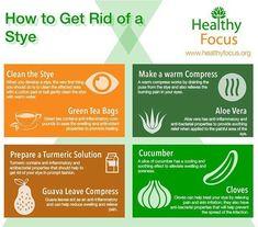 How to Get Rid of a Stye - Healthy Focus Eye Stye Remedies, Eczema Remedies, Natural Remedies, Flu Remedies, Get Rid Of Stye, Skin Care Regimen, Skin Care Tips, Anti Aging, Plants