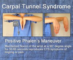 Phalen's maneuver for assessing Carpal Tunnel Syndrome. Phalen's maneuver produces paresthesia of the median nerve distribution within 60 seconds; of clients diagnosed with carpal tunnel syndrome have a positive result. Carpal Tunnel Relief, Carpal Tunnel Syndrome, Pain Relief, Occupational Therapy, Physical Therapy, Carpal Tunnel Exercises, K Tape, Hand Surgery, Massage
