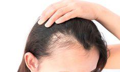 Η τριχόπτωση δεν έχει προτίμηση στο γένος. Εμφανίζεται στις γυναίκες με την ίδια συχνότητα όπως και στο αντίθετο φύλο. Causes Of Hair Fall, Hair Loss Causes, Prevent Hair Loss, Best Hair Oil, Essential Oils For Hair, Hair Loss Women, Hair Loss Remedies, Hair Growth Oil, Hair Restoration