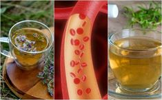 Blocked arteries can unleash serious consequences for cardiovascular health. Luckily, herbal teas can help you clean your arteries naturally. Nigella Sativa, Circulation Sanguine, High Cholesterol, Kraut, Natural Healing, Home Remedies, Herbalism, The Cure, Alcoholic Drinks