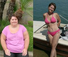 Gastric Sleeve Before And After <b>gastric sleeve</b> mexico $ 4,400  <b>bariatric</b> surgery