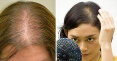 Rapunzel, Hair Beauty, Make Up, Tips, Fashion, Hair Masks Homemade, Thin Hair Haircuts, Homemade Hair, Thinning Hair