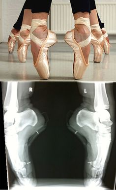 Next time you want to say that ballet is easy, think about this image.