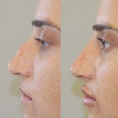"""Bei dieser Patientin habe ich mittels Injektion von Hyaluronsäure einerseits einen Nasenhöcker verbessert als auch die Lippen mit mehr Volumen """"optimiert"""" Lips, Face"""