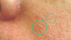 Skin Care, Tattoos, Health, Face, Tips, Dark Around Eyes, Tatuajes, Health Care, Skincare Routine