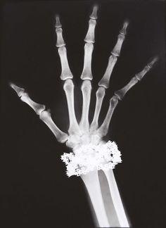 Van Cleef & Arpels Diamond Bracelet X-Ray, Paris, 1979 by Helmut Newton