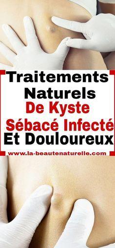 Traitements naturels de kyste sébacé infecté et douloureux #kyste #sébacé