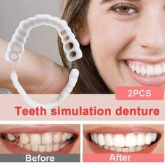Veneers Teeth, Dental Veneers, Perfect Smile, Perfect Fit, Perfect Teeth, Snap On Smile, Teeth Whitening Procedure, Bloody Mary Recipes, Teeth Bleaching