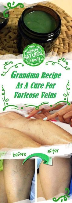 This SIMPLE Ancient Grandma Recipe As A Cure For Varicose Veins