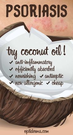 Why Use Coconut Oil for Psoriasis? Learn about the benefits of coconut oil for skin conditions such as psoriasis: http://www.optiderma.com/articles/coconut-oil-psoriasis/