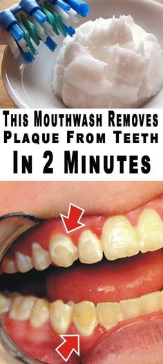 How to Remove Tartar from Teeth Without Dentist - How to Remove Calculus from Teeth Without Going to the Dentist - plaque removal mouthwash