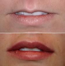 Juvederm can work wonders for evening out disproportionate lips. #Juvederm
