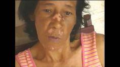 Depoimento Sylocimol - Lupus Eritematoso Recupere Sua Saúde Aqui►http://sylocimol.projeto-de-vida.com