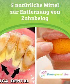 5 #natürliche Mittel zur Entfernung von #Zahnbelag   Verfärbte Zähne sind nicht nur unschön, sondern stellen auch ein #Gesundheitsrisiko dar. Im Zahnbelag vermehren sich Keime und verursachen #Infektionen.