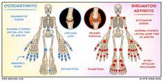 Osteoarthritis vs. Rheumatoid Arthritis | Medcomic