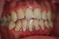 Periodontal Disease Do you have these signs of gum disease? Get the Facts! www.gumdiseasesanantonio.com