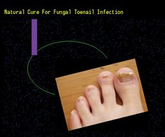Natural cure for fungal toenail infection - Nail Fungus Remedy. You have nothing to lose! Visit Site Now