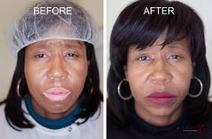 Loss of pigment in the skin due to Vitiligo can be treated with MicroArt™. Colors are custom blended and applied in micro layers until the desired results are attained. Call us at 888-943-8880 to schedule your 1st MicroArt appointment and receive a $50 FREE Gift Card.