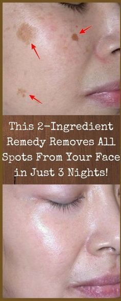 This 2-Ingredient Remedy Removes all Spots from Your Face in just 3 Nights! | Worthy Tips and Tricks