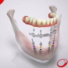 Já conhece o All-on-4? Este processo recupera os casos mais complexos, onde existe perda de massa óssea. www.pnid.pt