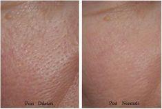 Maschere naturali da preparare in casa per ridurre i pori dilatati