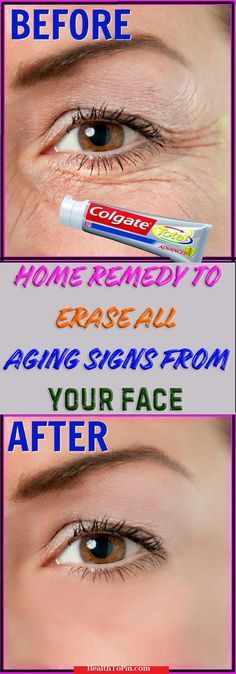Home Remedy To Erase All Aging Signs From Your Face #face #beauty #skin #aging