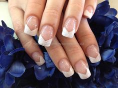 White chevron French gel tips with pink glitter overlay