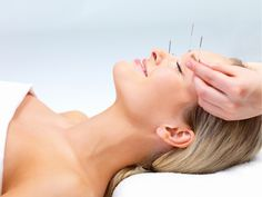 Can you tell me whether acupuncture is useful for allergy relief? I've heard that it can help, but I don't know whether I should try it or not. Nothing else works well.