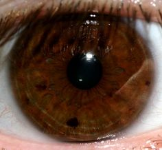 marks in eyes iris | Recent Photos The Commons Getty Collection Galleries World Map App ...