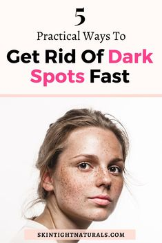 Bye-Bye Dark Spots - 5 Ways To Treat Hyperpigmentation So It Never Comes Back! You don't have to live with hyperpigmentation. Start taking selfies again! Bye Bye, Organic Skin Care, Natural Skin Care, Natural Beauty, Skin Secrets, Skin Tightening, Spa Treatments, Dark Spots, Ideas