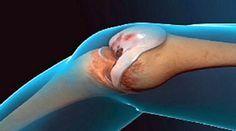 Les médecins sont en admiration totale : cette recette régénère vos articulations et vous offre de nouveaux genoux !!