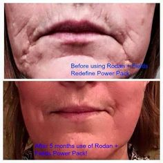 With Rodan + Fields you can age gracefully! We are all aging everyday! How you want to look tomorrow depends on whether you want to do something about it today! BUY one of our bundles (Regimen+ tools) a Redefine Regimen, Rodan And Fields Redefine, Multifunction Eye Cream, Rodan And Fields Business, Reverse Aging, Cosmetics Ingredients, Anti Aging Supplements, Anti Aging Tips, Aging Gracefully
